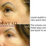 cosmetic eye surgery san diego 106 copy