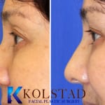 asian eyelid surgery san diego