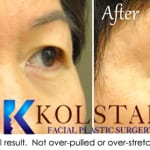Asian eyelid surgery san diego 2
