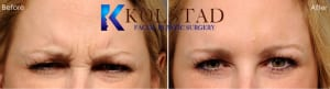 Botox Injections San Diego CA