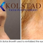 sd botox brow lift