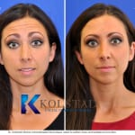 botox results san diego