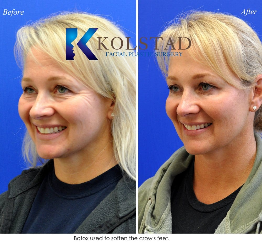 Botox Procedure San Diego Before & After