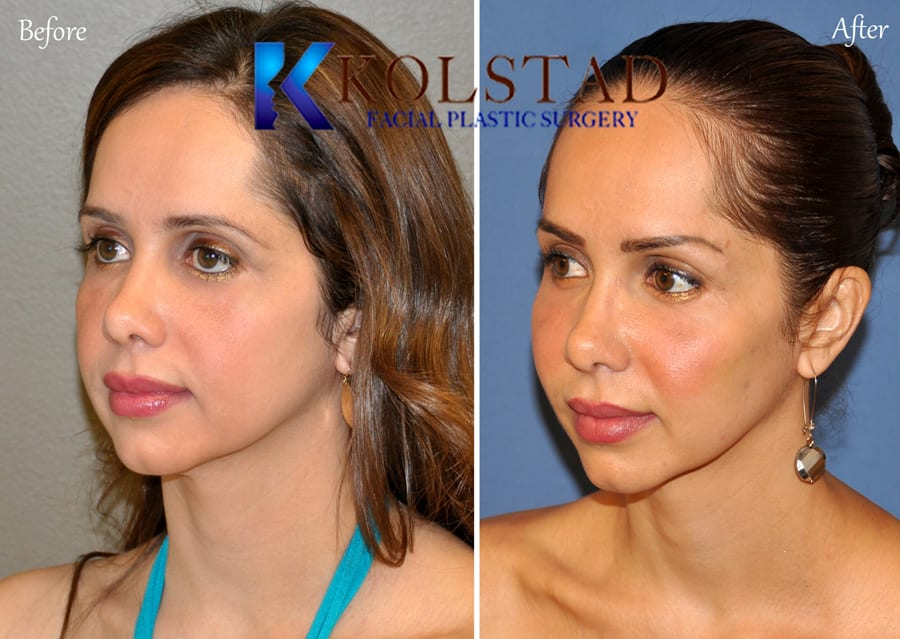 facial Fat Transfer San Diego