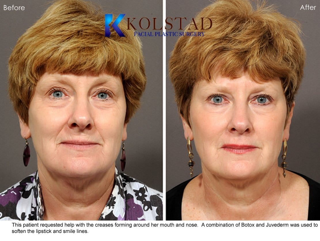 Juvederm San Diego Before & After