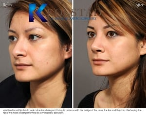 asian rhinoplasty san diego 601 copy