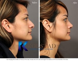 asian rhinoplasty san diego 602 copy