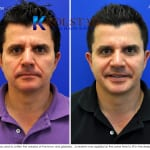 male results botox