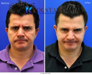 male botox results san diego