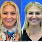 botox before and after near me