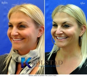 crows feet botox san diego results