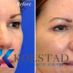 cosmetic eye surgery san diego 252 copy