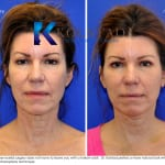 cosmetic eye surgery san diego 253 copy
