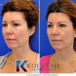 cosmetic eye surgery san diego 254 copy