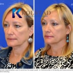 cosmetic eyelid surgery san diego 435 copy