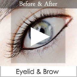 lower blepharoplasty san diego