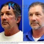 male face lift san diego 50