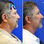 male face lift san diego 53