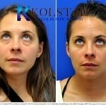 scarless blepharoplasty san diego 21 copy