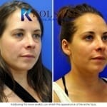 scarless blepharoplasty san diego 24 copy