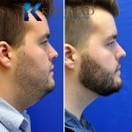 neck liposuction san diego 50 copy