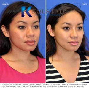 san diego asian rhinoplasty 200 copy