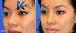 san diego asian rhinoplasty 203 copy