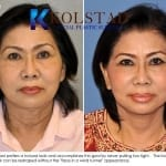 Asian Face lift San Diego