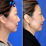asian eyelid surgery san diego 503 copy