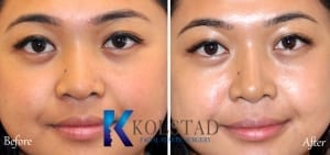 best asian rhinoplasty san diego
