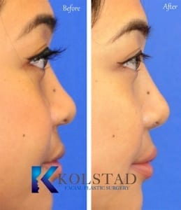 asian rhinoplasty results