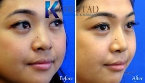 asian rhinoplasty san diego 505b copy