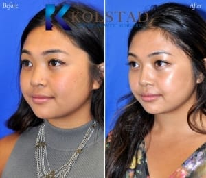 asian rhinoplasty san diego 506 copy