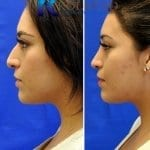 mexican rhinoplasty pictures before and after