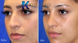 mexican rhinoplasty san diego 163 copy