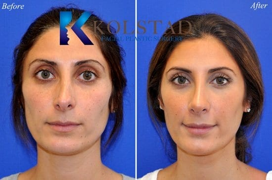 Revision Nose Surgery San Diego CA