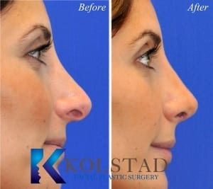 best revision rhinoplasty surgeon