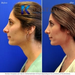 best revision rhinoplasty san diego