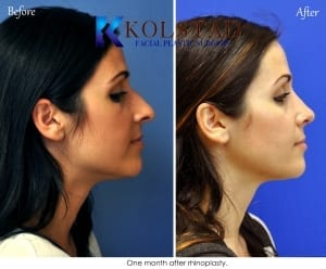ethnic rhinoplasty san diego 120 copy
