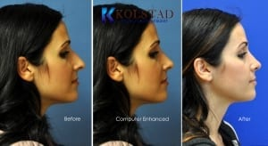 ethnic rhinoplasty san diego 127 copy