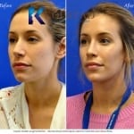 cheek augmentation san diego 501