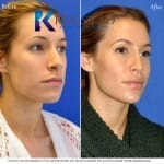 liquid cheek augmentation san diego 502 copy