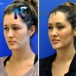 liquid cheek augmentation san diego 51 copy