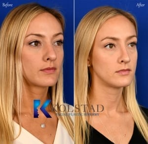 best revision nose surgery san diego