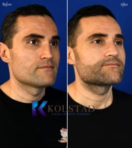 crooked bridge rhinoplasty