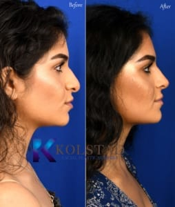 nose job san diego ethnic