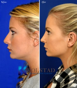 san diego nose surgery