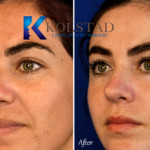 before and after rhinoplasty san diego