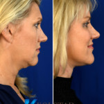facelift surgeon san diego