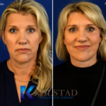 natural face lift before and after